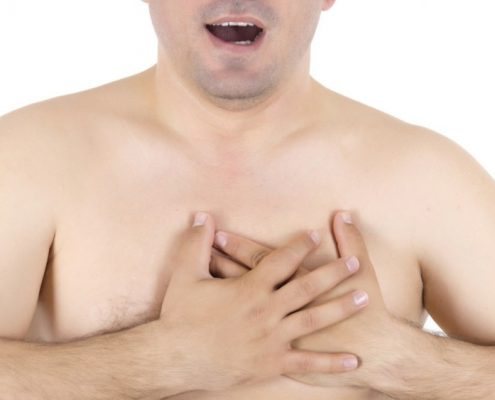 سرطان سینه آقایان